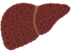 Icon of liver with cirrhosis stage F4